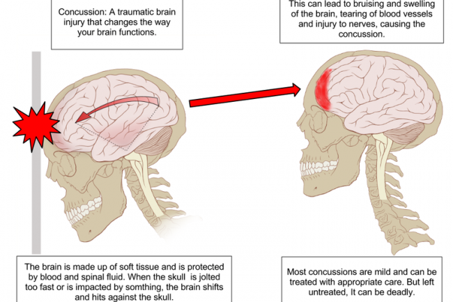 800px-Concussion_Anatomy_original_original_crop_exact